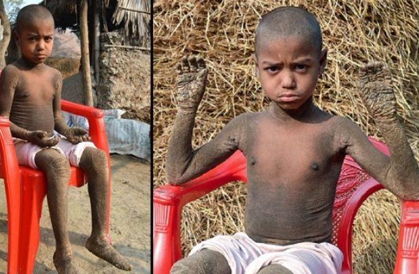 مرض يحول طفلا لصخرة